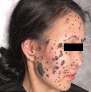 Ношение маски: опасно для жизни?